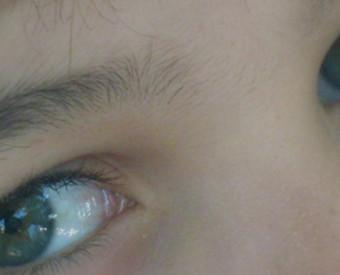omeopatia-salute-salute-occhio-prevenzione-iniziare-piccoli